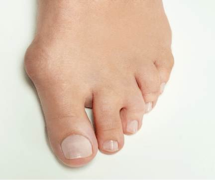 Bunion Treatment Manly Vale