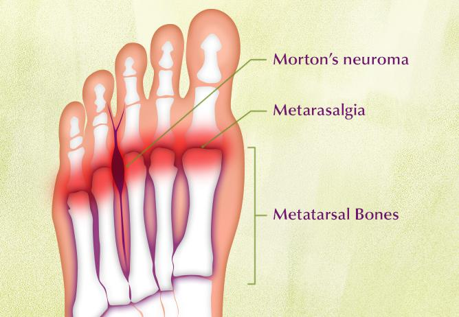 Morton Neuroma Treatment Sydney