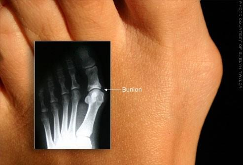 Risks & Complications of Bunions