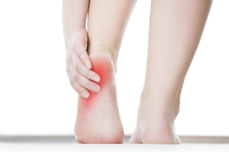 Heel Pain Treatment Point Piper